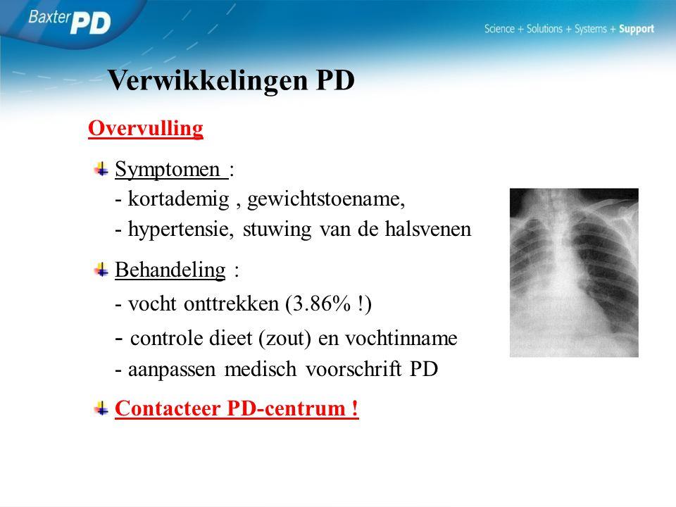 Overvulling Symptomen : - kortademig, gewichtstoename, - hypertensie, stuwing van de halsvenen Behandeling : - vocht onttrekken (3.86% !) - controle d