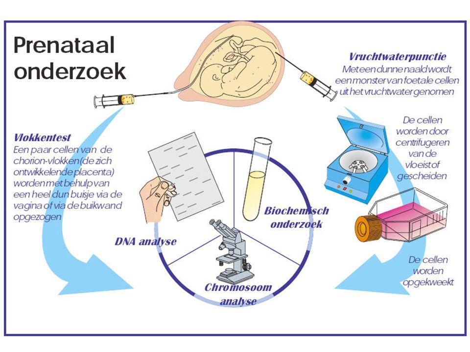 Prenataal onderzoek Vlokkentest Vruchtwaterpunctie Navelstrengpunctie Karyogram (chromosoom-analyse) Cellen weghalen via: DNA-analyse (m.b.v.