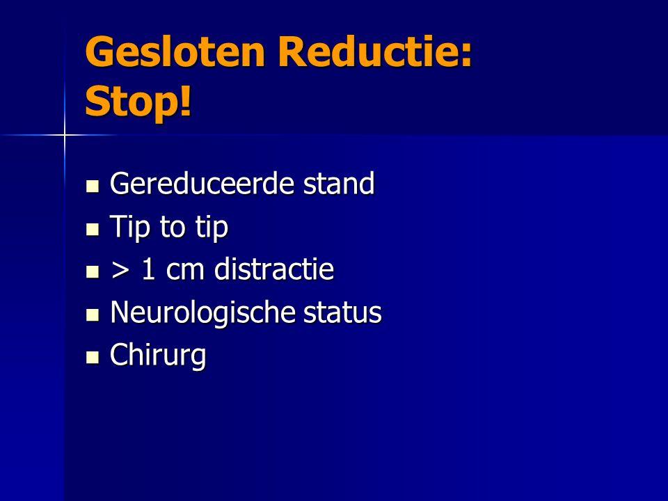 Gesloten Reductie: Stop! Gereduceerde stand Gereduceerde stand Tip to tip Tip to tip > 1 cm distractie > 1 cm distractie Neurologische status Neurolog