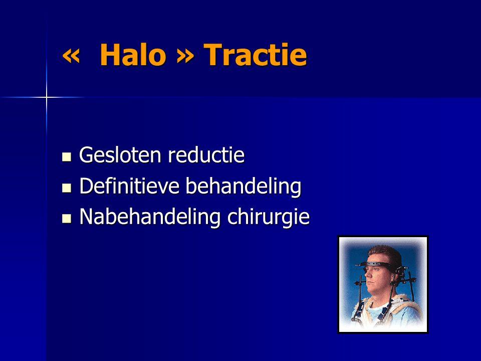 « Halo » Tractie Gesloten reductie Gesloten reductie Definitieve behandeling Definitieve behandeling Nabehandeling chirurgie Nabehandeling chirurgie
