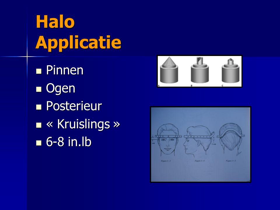Halo Applicatie Pinnen Pinnen Ogen Ogen Posterieur Posterieur « Kruislings » « Kruislings » 6-8 in.lb 6-8 in.lb