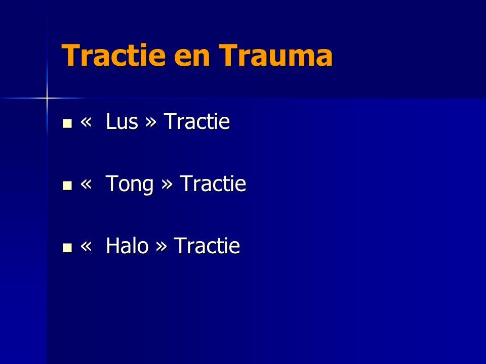 « Lus » Tractie « Lus » Tractie « Tong » Tractie « Tong » Tractie « Halo » Tractie « Halo » Tractie