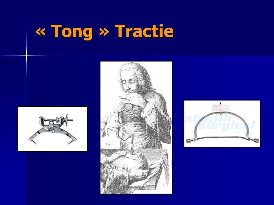 « Tong » Tractie
