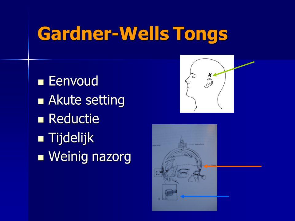Gardner-Wells Tongs Eenvoud Eenvoud Akute setting Akute setting Reductie Reductie Tijdelijk Tijdelijk Weinig nazorg Weinig nazorg