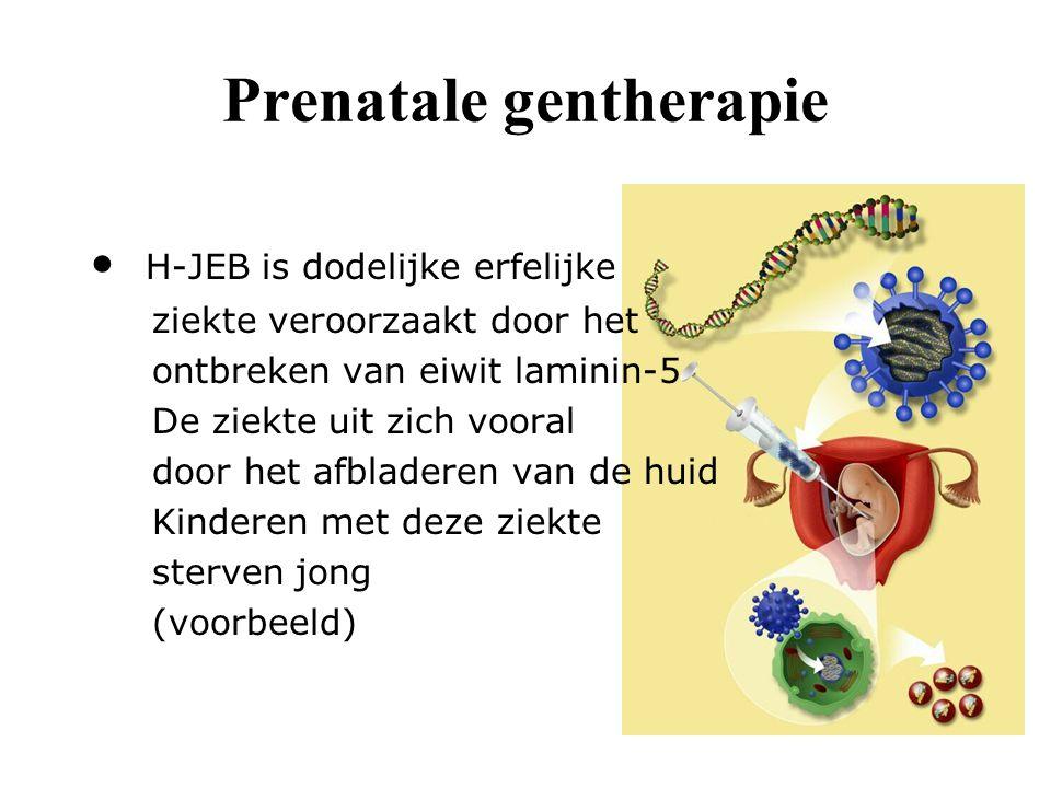 IN-VIVO-GENTHERAPIE Virussen met gezonde gen worden uit kweekcellen gehaald Virussen worden ingespoten waardoor zieke cellen gezonde genen krijgen