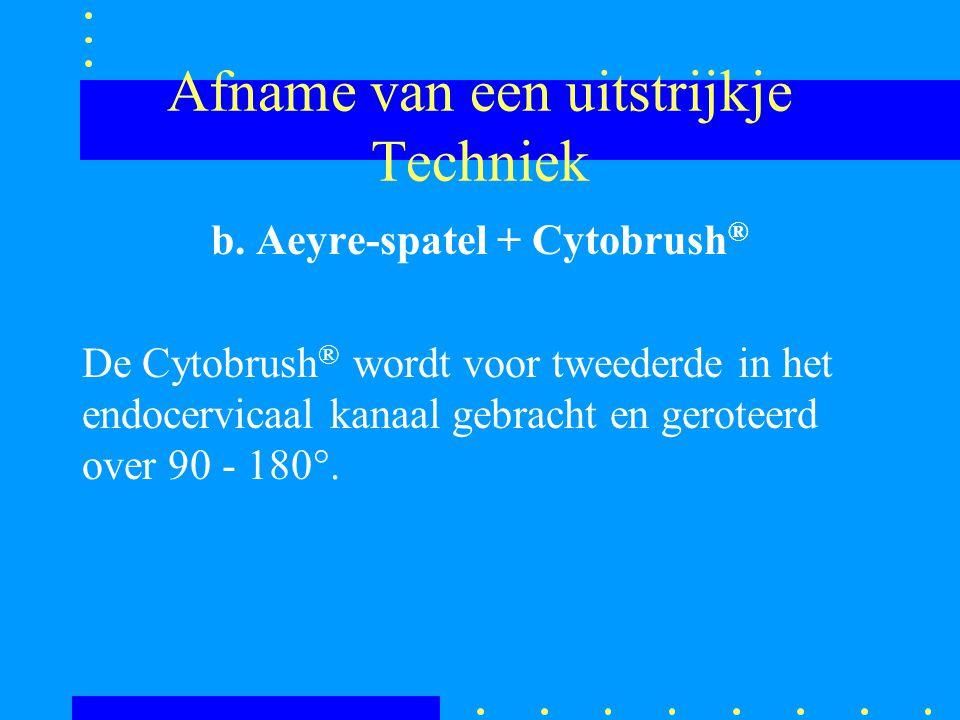 Afname van een uitstrijkje Techniek b. Aeyre-spatel + Cytobrush ® De Cytobrush ® wordt voor tweederde in het endocervicaal kanaal gebracht en geroteer