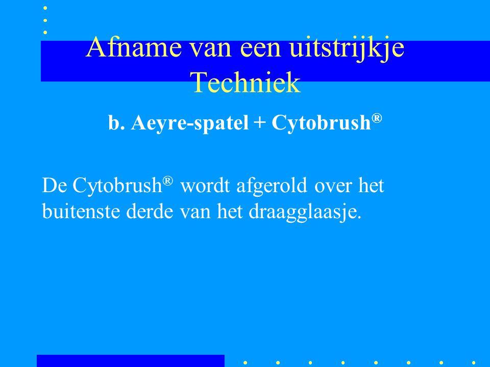 Afname van een uitstrijkje Techniek b. Aeyre-spatel + Cytobrush ® De Cytobrush ® wordt afgerold over het buitenste derde van het draagglaasje.
