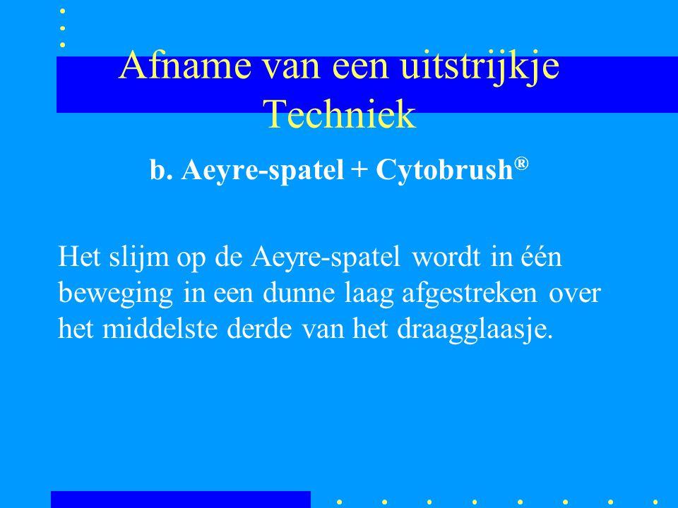 Afname van een uitstrijkje Techniek b. Aeyre-spatel + Cytobrush ® Het slijm op de Aeyre-spatel wordt in één beweging in een dunne laag afgestreken ove