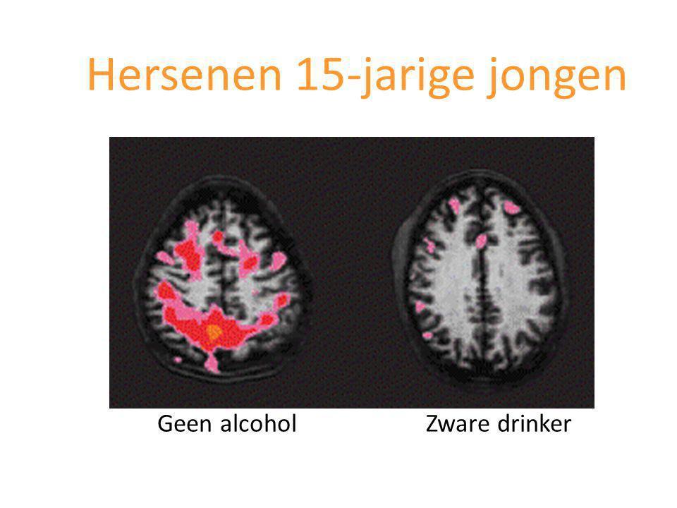 Geen alcohol Zware drinker Hersenen 15-jarige jongen