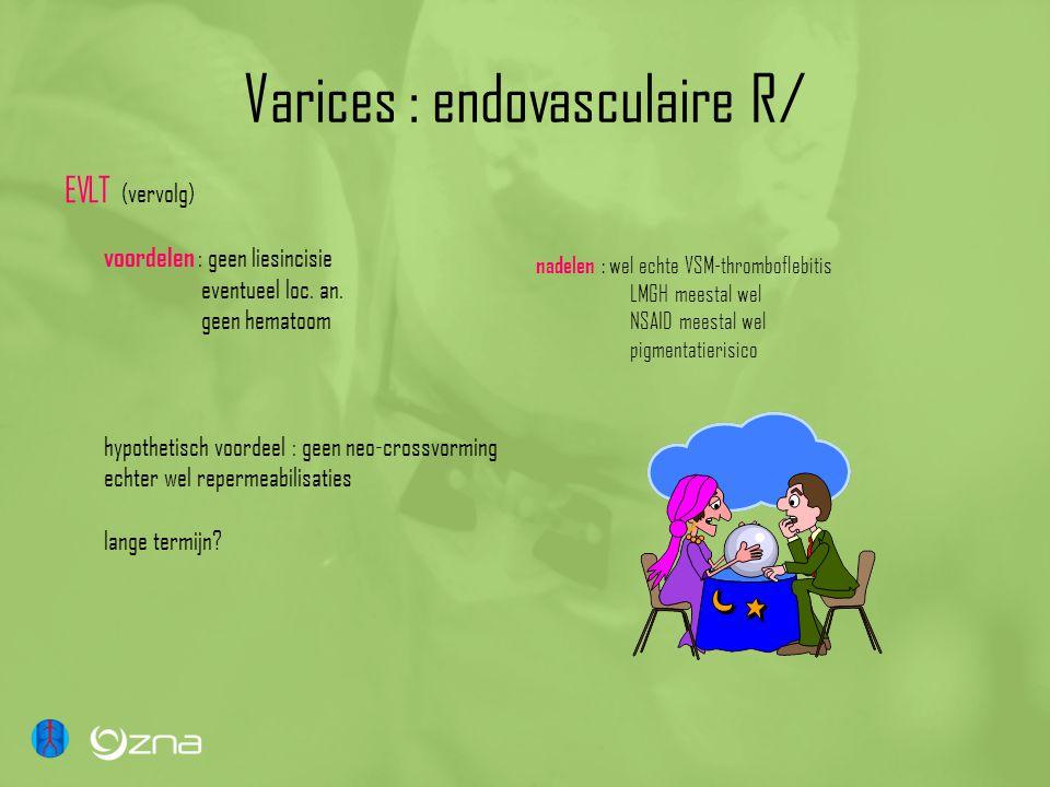 Varices : endovasculaire R/ EVLT (vervolg) voordelen : geen liesincisie eventueel loc. an. geen hematoom hypothetisch voordeel : geen neo-crossvorming