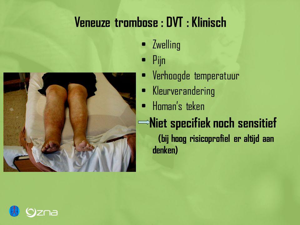 Veneuze trombose : DVT : Klinisch Zwelling Pijn Verhoogde temperatuur Kleurverandering Homan's teken Niet specifiek noch sensitief (bij hoog risicopro
