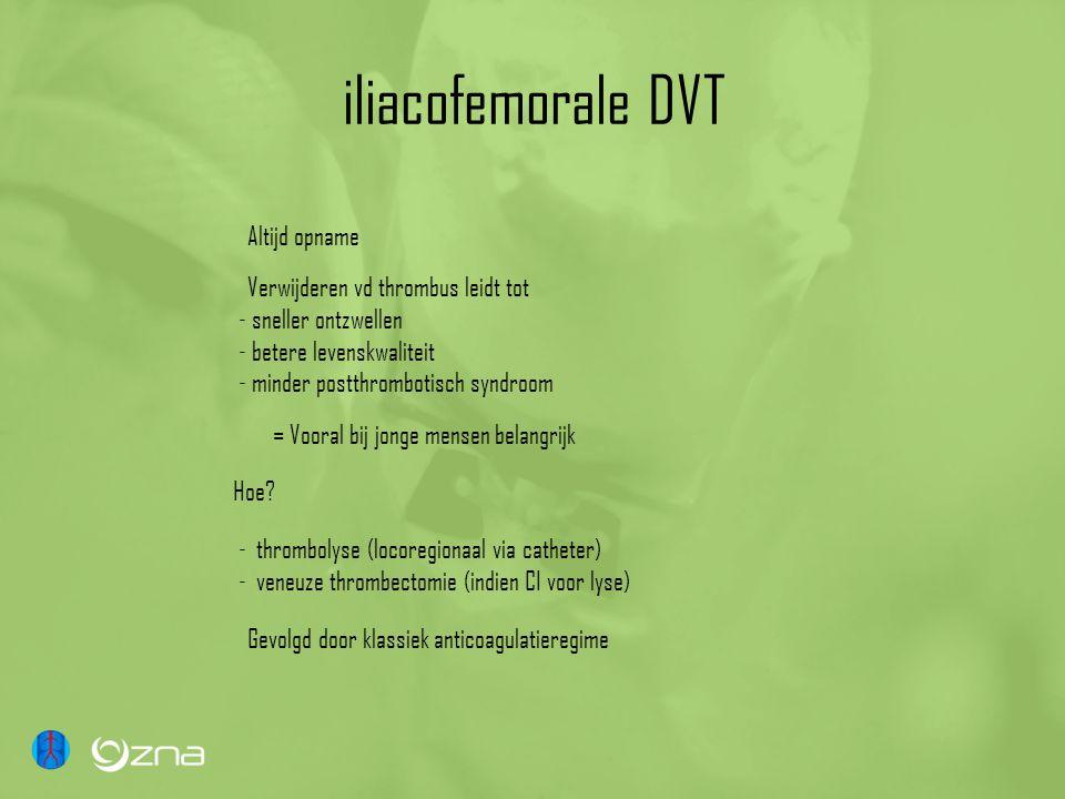 iliacofemorale DVT Altijd opname Verwijderen vd thrombus leidt tot - sneller ontzwellen - betere levenskwaliteit - minder postthrombotisch syndroom = Vooral bij jonge mensen belangrijk Hoe.