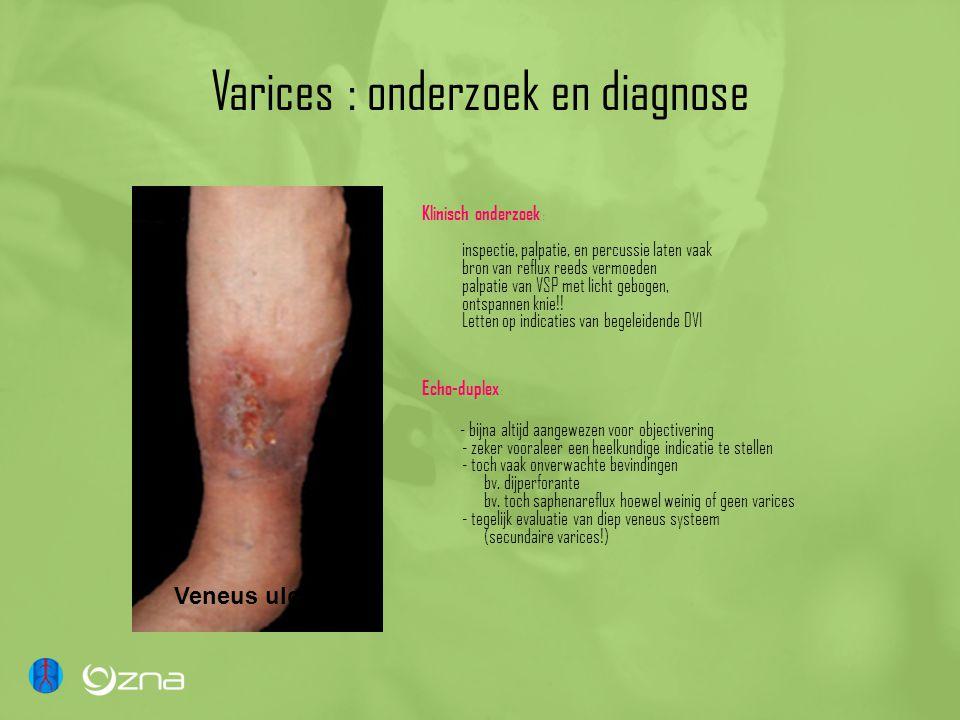 Varices : onderzoek en diagnose Klinisch onderzoek : inspectie, palpatie, en percussie laten vaak bron van reflux reeds vermoeden palpatie van VSP met licht gebogen, ontspannen knie!.