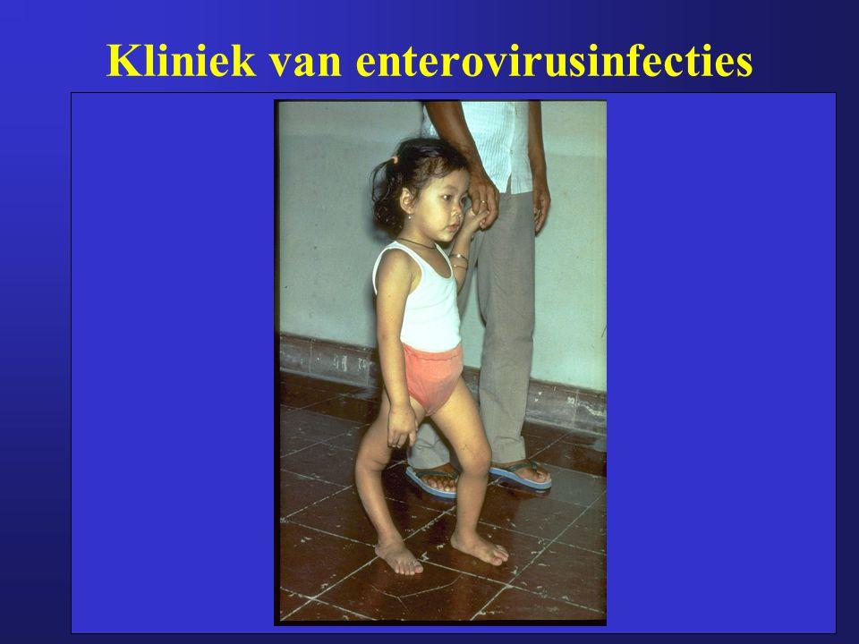 Kliniek van enterovirusinfecties