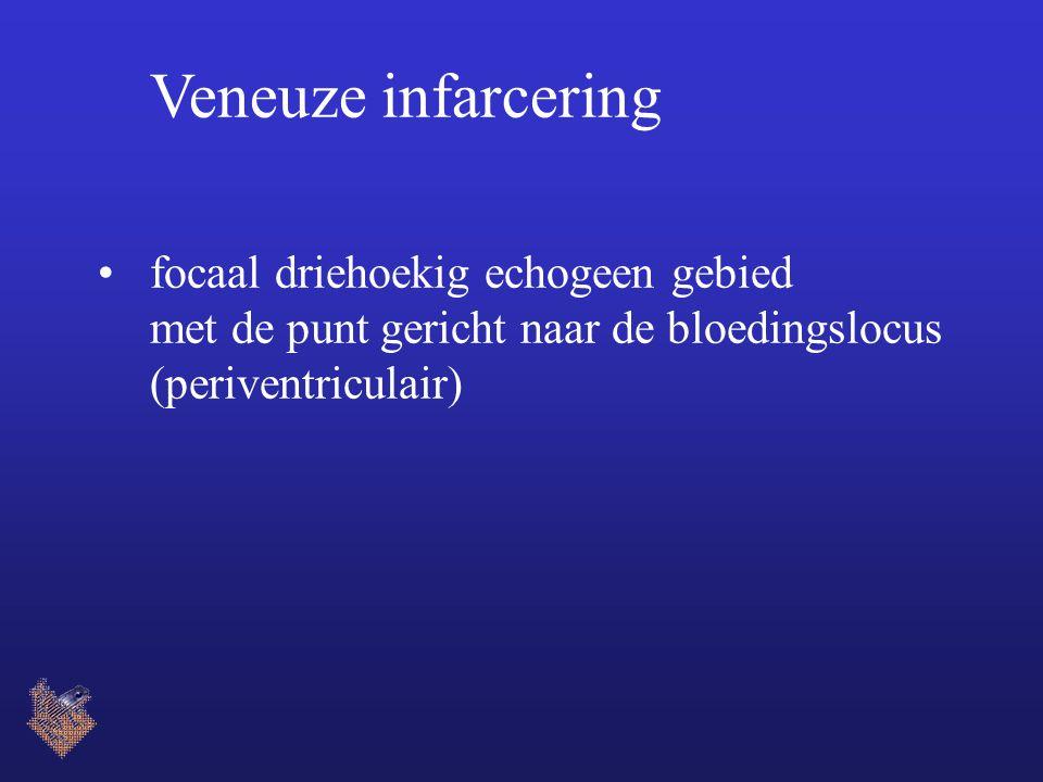 Veneuze infarcering focaal driehoekig echogeen gebied met de punt gericht naar de bloedingslocus (periventriculair)