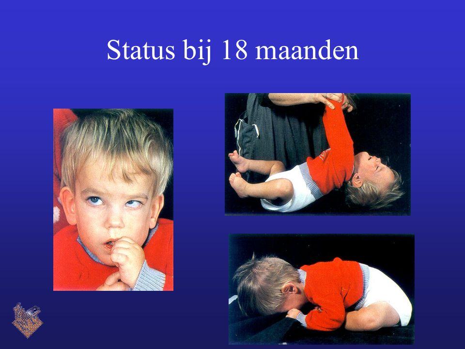 Status bij 18 maanden