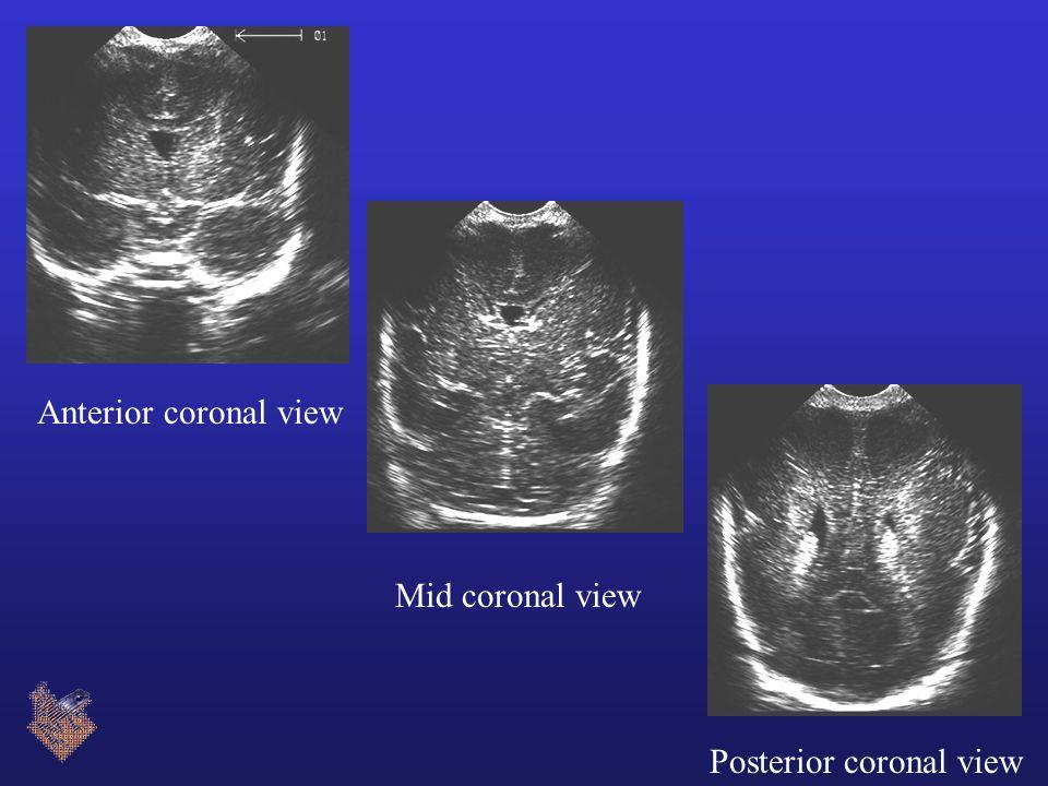 Anterior coronal view Mid coronal view Posterior coronal view