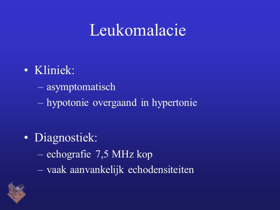 Leukomalacie Kliniek: –asymptomatisch –hypotonie overgaand in hypertonie Diagnostiek: –echografie 7,5 MHz kop –vaak aanvankelijk echodensiteiten
