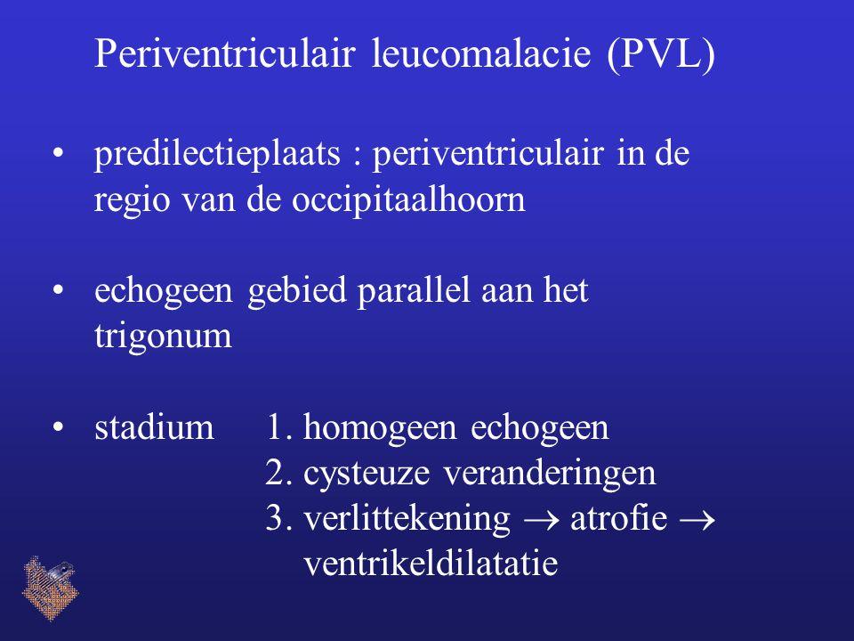 Periventriculair leucomalacie (PVL) predilectieplaats : periventriculair in de regio van de occipitaalhoorn echogeen gebied parallel aan het trigonum
