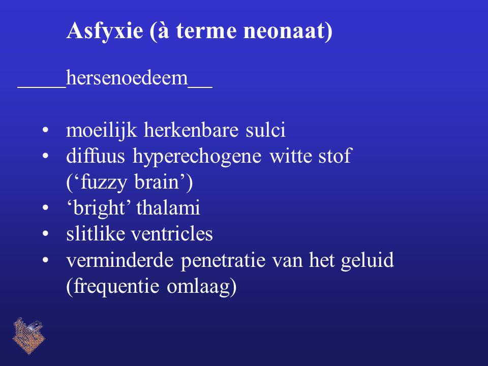 Asfyxie (à terme neonaat) hersenoedeem moeilijk herkenbare sulci diffuus hyperechogene witte stof ('fuzzy brain') 'bright' thalami slitlike ventricles verminderde penetratie van het geluid (frequentie omlaag)