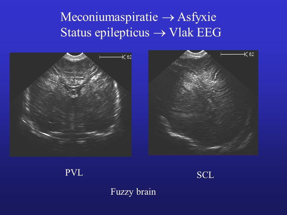 PVL SCL Fuzzy brain Meconiumaspiratie  Asfyxie Status epilepticus  Vlak EEG