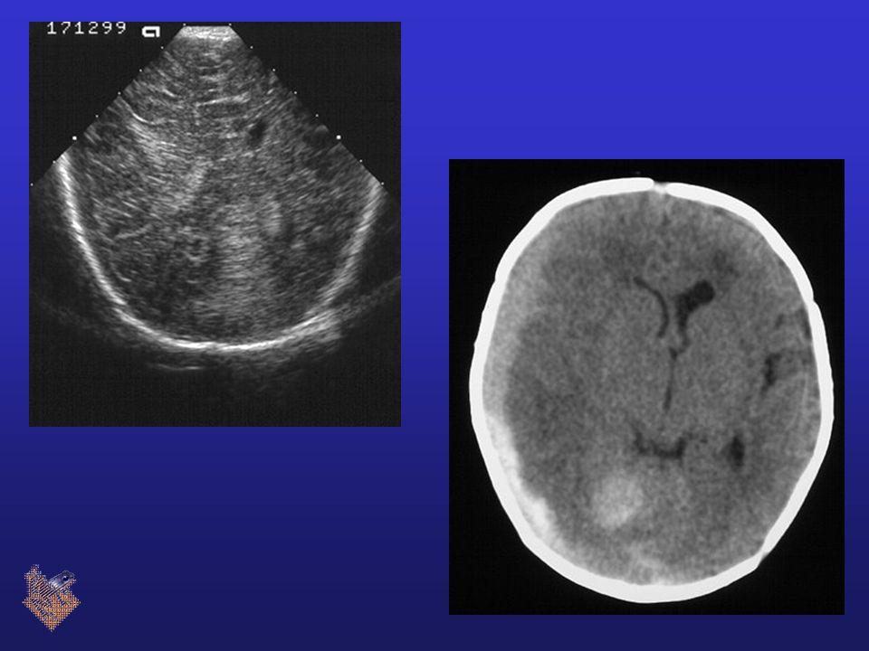 Veneuze infarcering subependymale bloeding  compressie vene  veneus infarct DD veneuze thrombose