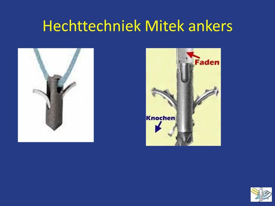 Hechttechniek Mitek ankers