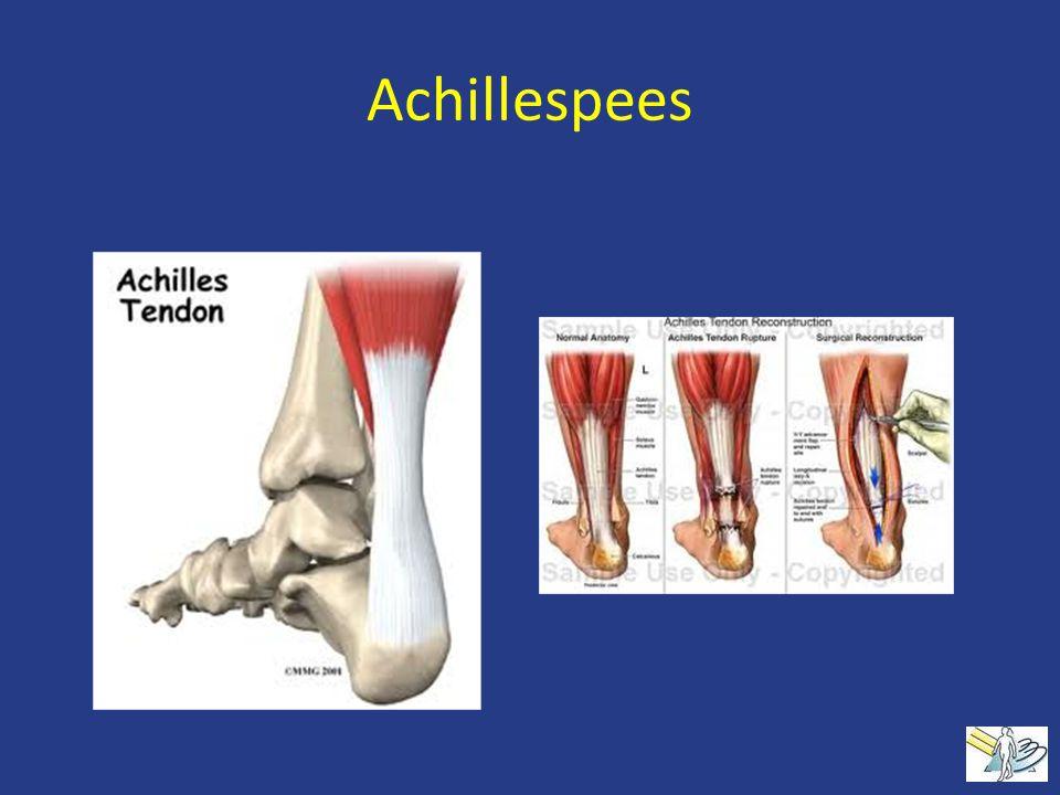 Achillespees