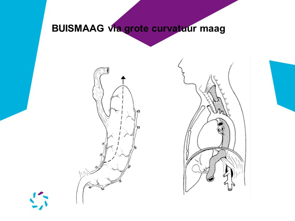 BUISMAAG via grote curvatuur maag