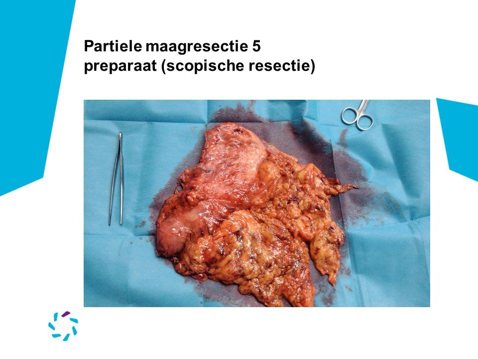 Partiele maagresectie 5 preparaat (scopische resectie)