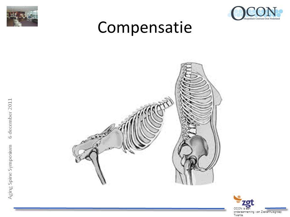 Aging Spine Symposium 6 december 2011 OCON is een onderaanneming van Ziekenhuisgroep Twente Compensatie