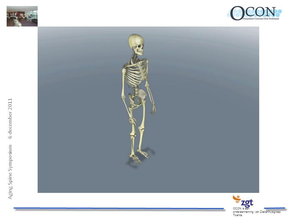 Aging Spine Symposium 6 december 2011 OCON is een onderaanneming van Ziekenhuisgroep Twente