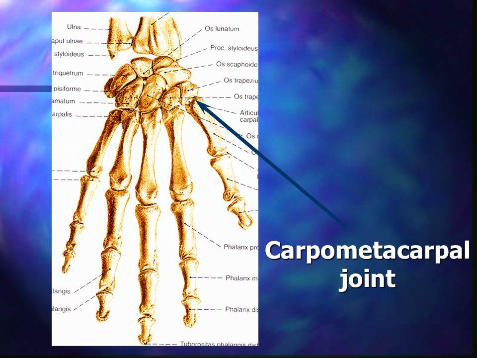 Carpometacarpal joint