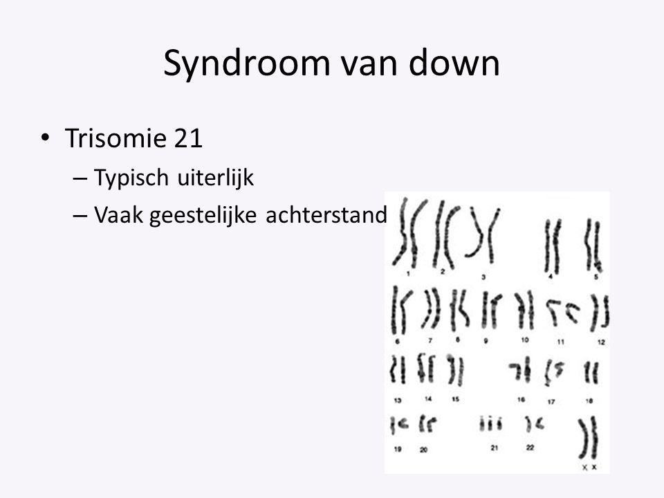 Syndroom van down Trisomie 21 – Typisch uiterlijk – Vaak geestelijke achterstand