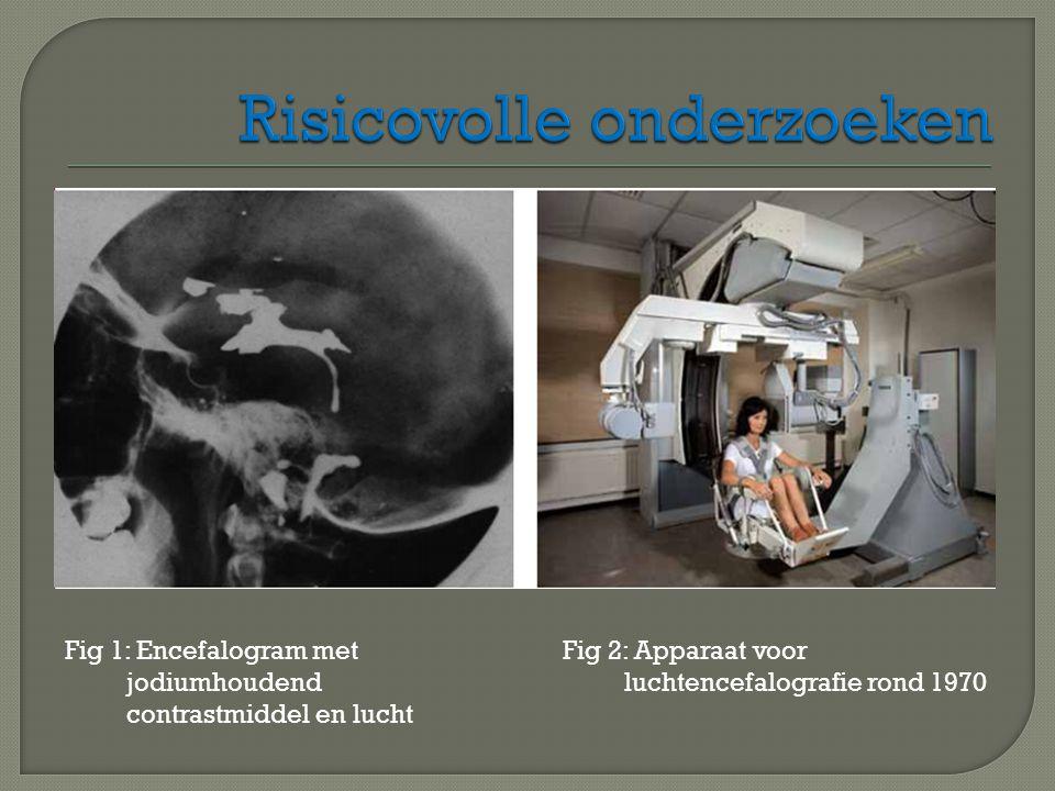 Fig 1: Encefalogram met jodiumhoudend contrastmiddel en lucht Fig 2: Apparaat voor luchtencefalografie rond 1970
