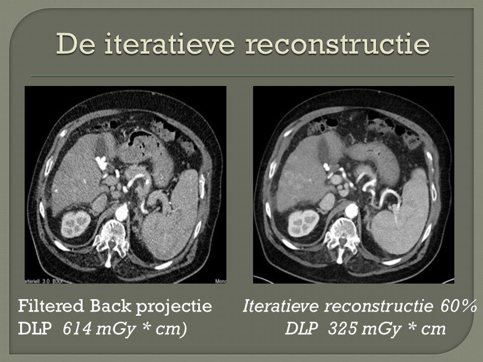 Filtered Back projectie DLP 614 mGy * cm) Iteratieve reconstructie 60% DLP 325 mGy * cm
