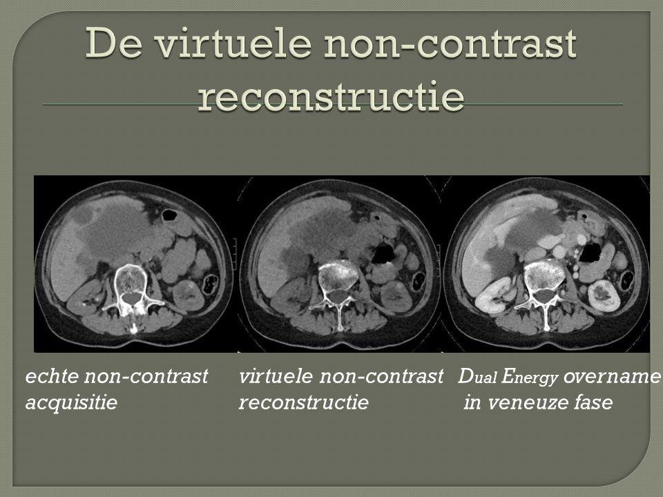 echte non-contrast acquisitie virtuele non-contrast reconstructie D ual E nergy overname in veneuze fase