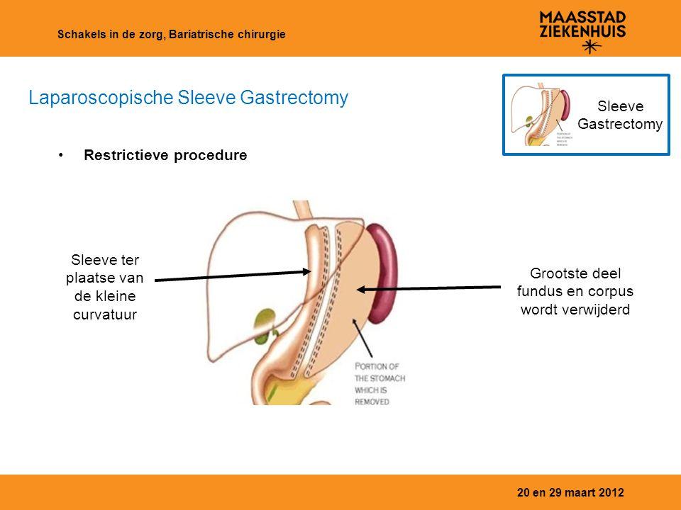 20 en 29 maart 2012 Schakels in de zorg, Bariatrische chirurgie Sleeve Gastrectomy Laparoscopische Sleeve Gastrectomy Restrictieve procedure Sleeve te