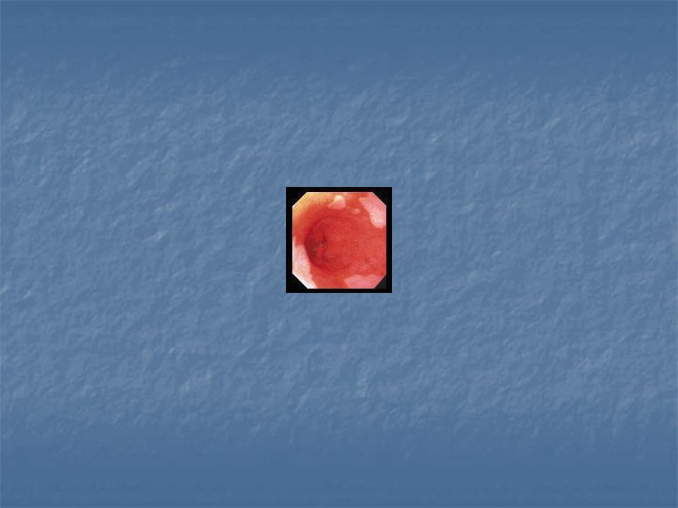 Dysplasie Dysplasie is een verandering in de cellen van het (intestinale) slijmvlies welke alle kenmerken vertoont van een tumorale cel Dysplasie is een verandering in de cellen van het (intestinale) slijmvlies welke alle kenmerken vertoont van een tumorale cel Er zijn architecturale afwijkingen en kernafwijkingen Er zijn architecturale afwijkingen en kernafwijkingen Hoe meer uitgesproken de kernatypieen, hoe hoger de grad van dysplasie Hoe meer uitgesproken de kernatypieen, hoe hoger de grad van dysplasie Deze dysplastische cellen blijven evenwel ter plaatse en gaan niet, zoals per definitie kankercellen, invaderen (uitgroeien) buiten hun normale lokatie Deze dysplastische cellen blijven evenwel ter plaatse en gaan niet, zoals per definitie kankercellen, invaderen (uitgroeien) buiten hun normale lokatie
