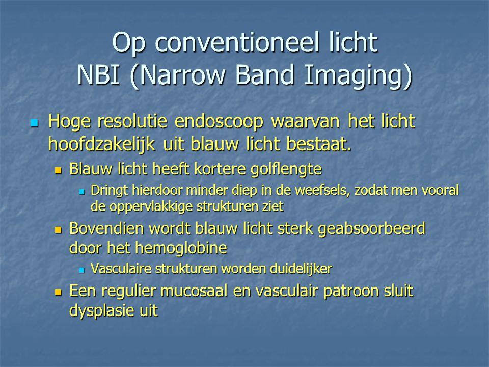 Op conventioneel licht NBI (Narrow Band Imaging) Hoge resolutie endoscoop waarvan het licht hoofdzakelijk uit blauw licht bestaat. Hoge resolutie endo