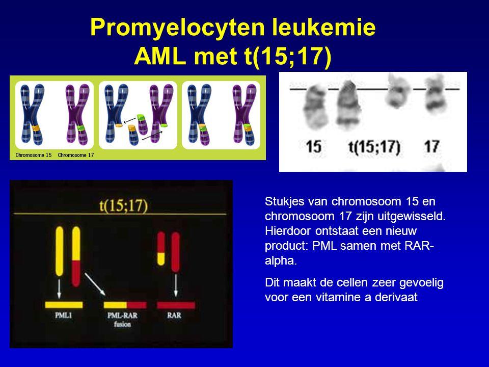 Promyelocyten leukemie AML met t(15;17) Stukjes van chromosoom 15 en chromosoom 17 zijn uitgewisseld. Hierdoor ontstaat een nieuw product: PML samen m