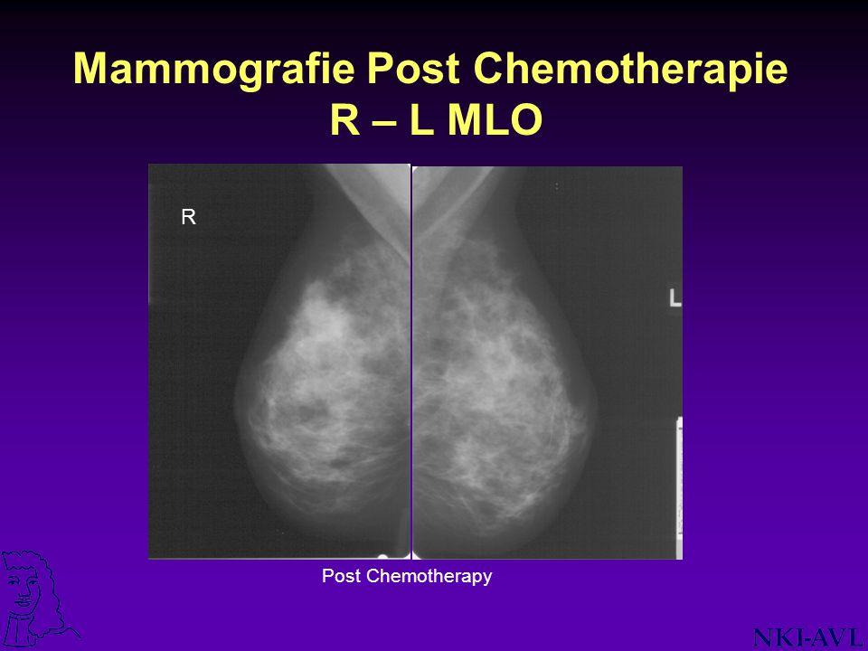 Mammografie Post Chemotherapie R – L MLO Post Chemotherapy R