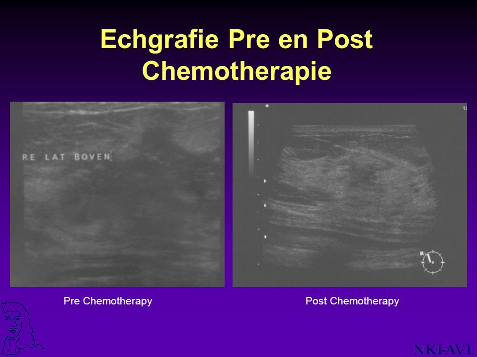 Echgrafie Pre en Post Chemotherapie Pre ChemotherapyPost Chemotherapy