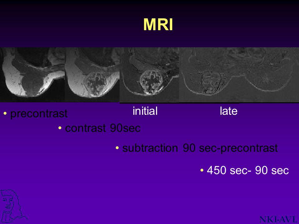 MRI precontrast contrast 90sec subtraction 90 sec-precontrast initial 450 sec- 90 sec late