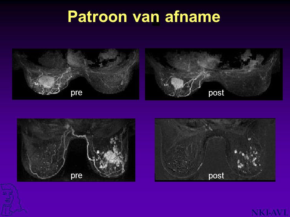 The Netherlands Cancer Institute / Antoni van Leeuwenhoek Hospital Voorstel Imaging Baseline voor start chemo MRI + Palpatie + Mammografie + Echografie Twijfel respons, tijdens (na 2 kuren).