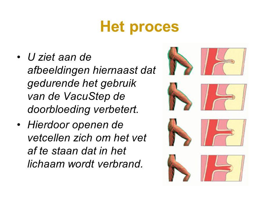 Het proces U ziet aan de afbeeldingen hiernaast dat gedurende het gebruik van de VacuStep de doorbloeding verbetert. Hierdoor openen de vetcellen zich