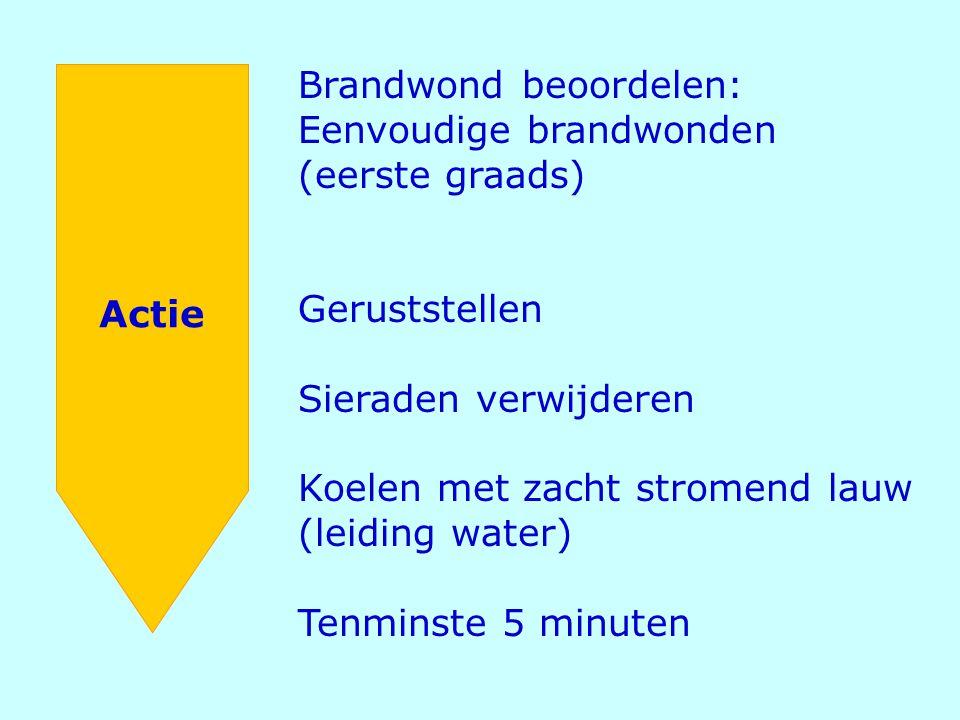 Actie Brandwond beoordelen: Eenvoudige brandwonden (eerste graads) Geruststellen Sieraden verwijderen Koelen met zacht stromend lauw (leiding water) T