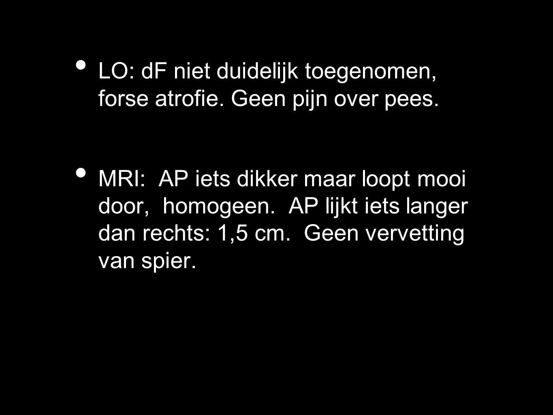 LO: dF niet duidelijk toegenomen, forse atrofie. Geen pijn over pees. MRI: AP iets dikker maar loopt mooi door, homogeen. AP lijkt iets langer dan rec