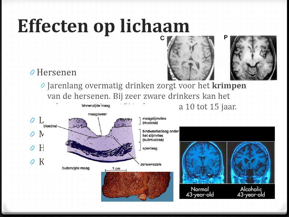 Effecten op lichaam 0 Hersenen 0 Jarenlang overmatig drinken zorgt voor het krimpen van de hersenen.