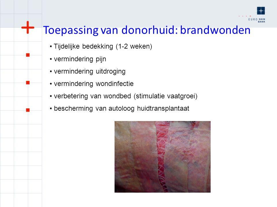 Toepassing van donorhuid: brandwonden Tijdelijke bedekking (1-2 weken) vermindering pijn vermindering uitdroging vermindering wondinfectie verbetering